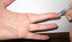 Špeciálny bod na prste: Okamžite zníži krvný tlak a odstráni každú bolesť | Báječné Ženy