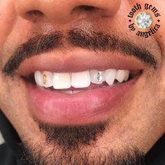 Piercing, Girl Grillz, Halo Tattoo, Tooth Gem, Scalp Micropigmentation, Oily Skin Treatment, Semi Permanent Makeup, Dollar Sign, Gold Teeth