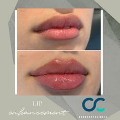 Dermal Fillers Lips, Face Fillers, Botox Fillers, Lip Injections Juvederm, Botox Lips, Cupids Bow Lips, Cosmetic Clinic, Lip Augmentation, Lip Shapes