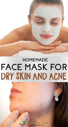 Homemade Face Mask for Dry Skin and Acne #facemask #dryskin #acne http://www.remedieslore.com/homemade-face-mask-for-dry-skin-and-acne/