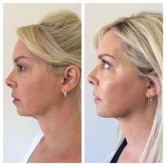 Non Surgical Facelift, Diamond Earrings, Pearl Earrings, Pearls, Jewelry, Fashion, Diamond Stud Earrings, Jewellery Making, Moda