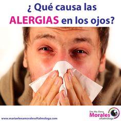 ¿ Qué causa las alergias en los ojos ? Muchas alergias oculares son una respuesta del cuerpo a los alergenos presentes en el aire - en zonas interiores o abiertas - tales como el polvo, la caspa animal, el moho o el humo. Algunos de los alergénos en el aire más comunes son el polen de hierba, de ambrosia, y en general de los árboles, que contribuyen al desarrollo de alergias estacionales.