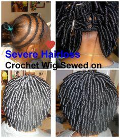 client suffers alopecia