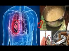 THIS RECIPE WILL EASILY CLEAR YOUR LUNGS IN 3