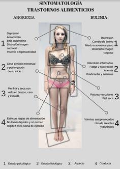 "Javier Montón. ""Anorexia y Bulimia"""