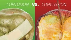Contusion vs. Concussion: Understanding the Difference