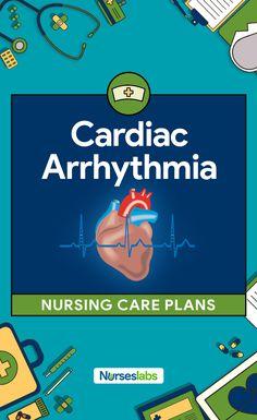 A cardiac arrhythmia is any disturbance in the normal rhythm of the electrical excitation of the heart. Here are 3 Cardiac Arrhythmia (Digitalis Toxicity) Nursing Care Plans Nursing School Scholarships, Online Nursing Schools, Nursing Career, Nursing Students, Lpn Schools, College Nursing, Student Nurse, What Is Nursing, Nursing Care Plan