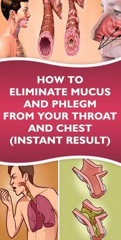 Healthy Men How To Eliminate Mucus And Phlegm From Your Throat And Chest - Coughing and breathing difficulties are often caused by nasal or throat obstructions. The phlegm in the lungs also contributes to these health issues. Health Remedies, Home Remedies, Cough Remedies, Herbal Remedies, Tomato Nutrition, Stomach Ulcers, Lunge, Coconut Health Benefits, Natural Cures