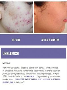 Sick of Adult Acne and post acne scars! Here's your answer! Unblemish By Rodan+Fields. You can't lose with the 60 day empty bottle money back guarantee. Take Control of you skin! Contact me @ serenac.myrandf.com
