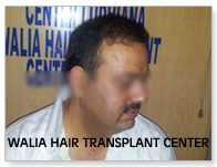It is India's best hair transplant centre.
