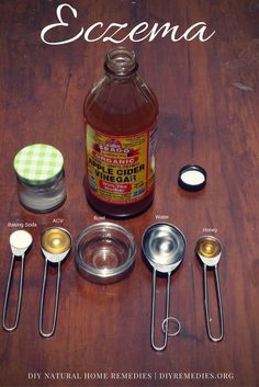 How to use Apple Cider Vinegar for Eczema:    From the above-mentioned properties, you came to know that ACV is an effective remedy for eczema but it is equally important to know how to use ACV properly.    Method – 4: (Apple Cider Vinegar with Baking Soda)    Baking soda exfoliates the skin to remove dead cells on its surface and soothes the skin to reduce rashes and inflammation caused on the affected skin areas. This combination balances the pH levels and helps for faster relief.