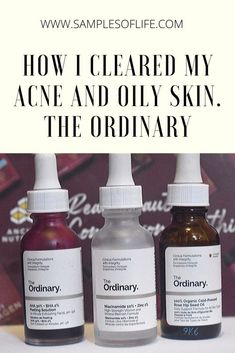 How I cleared my acne prone skin with the ordinary products. Best Skin Care Regimen, Oily Skin Care, Face Skin Care, Anti Aging Skin Care, Skin Care Tips, Skincare For Oily Skin, Dry Skin, Skin Care Routine For Teens, Skin Routine