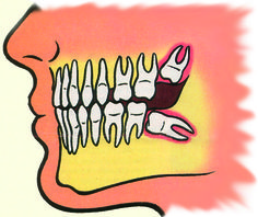 Impacted Wisdom Teeth or Third Molars! Best to have your wisdom teeth evaluated BEFORE they cause any problems. Dental Surgery, Dental Implants, Impacted Wisdom Teeth, Surgery Doctor, Gainesville Florida, Dental Crowns, Toot, Teeth Whitening, Dentistry