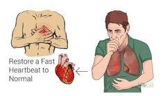 Heart palpitations are an abnormality or irregularity in the heartbeat, characterized by afeeling like your heart isfluttering, or beating too slow or too fast. This can last from just a few seconds to as long as hours. There can be various causes of palpitations, including external stimulants, psychological factors, and hormonal or biological conditions. Anemia, …