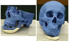 3ders.org - NEXT21 Japan signs deal with Xilloc to 3D print & sell customized artificial 'CT bones' within Europe | 3D Printer News & 3D Printing News