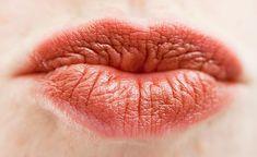 Herpes labiale: come curarlo con i rimedi naturali consigli bio