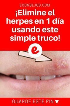 Eliminar herpes labial | ¡Elimine el herpes en 1 día usando este simple truco! | Es una receta bastante sencilla. Y los resultados son inmediatos. Aprende, prueba y comprueba!