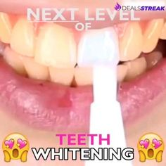 Nurse Discover Perfect Teeth Whitening Pen - OFF Whitening Pen removes all unwanted stains and makes your teeth crystal white without causing any discomfort that keeps your smile bright and beautiful. Its suitable even for sensitive teeth! Beauty Care, Beauty Skin, Beauty Hacks, Diy Beauty, Homemade Beauty, Face Beauty, Beauty Ideas, Beauty Advice, Huda Beauty