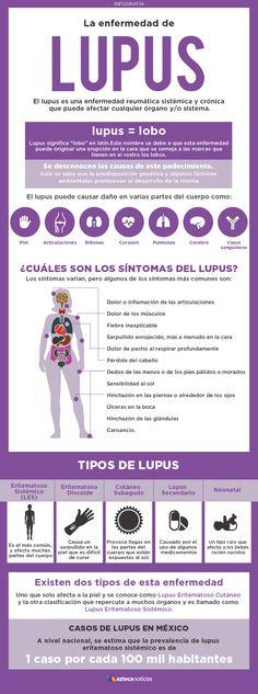 Conoce sobre la enfermedad de Lupus y aprende a prevenirla