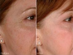 Laser Genesis Before & After.  No downtime, comfortable treatment for fine lines and wrinkles, pore size, and texture improvement.  #sholarcenter