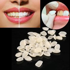 Cheap teeth veneers, Buy Quality dental teeth directly from China temporary crown Suppliers: Dental Teeth Veneers Ultra Thin Whitening Resin Anterior Upper Temporary Crown Porcelain Dental Material For Oral Care Teeth Whitening Procedure, Teeth Implants, Dental Implants, Dental Surgery, Veneers Teeth, Dental Veneers, Smile Teeth, Teeth Care, Wisdom Teeth Aftercare