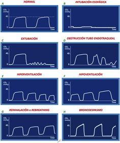 Figura 5. Capnograma fisiológico y sus variaciones más frecuentes. CO2: dióxido de carbono.
