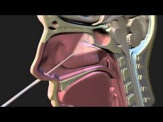 Pituitary Tumor Surgery