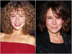 Jennifer Grey Nose Job Surgery Gone Wrong before and after pictures..