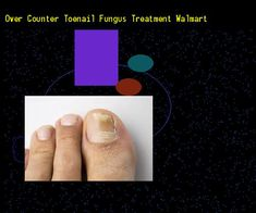 Over counter toenail fungus treatment walmart - Nail Fungus Remedy. You have nothing to lose! Visit Site Now