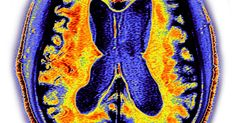 #Breakthrough blood test detects Alzheimer's with 100 PERCENT accuracy - Mirror.co.uk: Mirror.co.uk Breakthrough blood test detects…