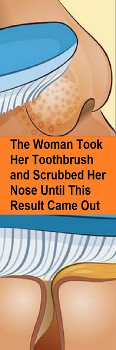 The Woman Took Her Toothbrush and Scrubbed Her Nose Until This Result Came Out