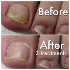 nail fungus pictures, Before and After toenail fungus laser ...