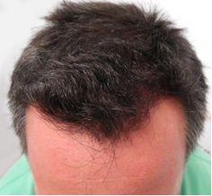 El nuevo suplemento de crecimiento del cabello que está arrasando