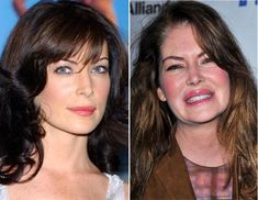 Celebrity plastic surgery faces before after3 Celebrity plastic surgery faces: before & after