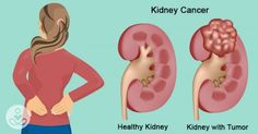 7 early warning signs that cancer is growing inside your kidney : The Hearty Soul