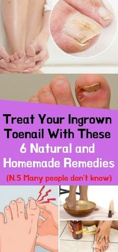 Treat Your Ingrown Toenail With These 6 Natural & Homemade Remedies The ingrown toenail is outstanding in therapeutic wording as onychocr. Herbal Remedies, Health Remedies, Natural Remedies, Health Facts, Health Tips, Health Care, Mental Health, Brain Health, Health Articles