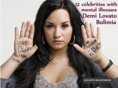 12 celebrities with mental illnesses - Demi Lovato, Bulimia