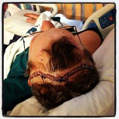 """This is what Brain Cancer looks like. GBM/Glioblastoma Multiforme.  At this time, there is no rhyme or reason why you """"get"""" brain cancer and there is no cure for GBM at this time.  Grey Matters."""