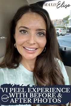 Click here to see the VI Peel process and experience on Maxie Elise Blog! VI peel before and after faces. VI peel precision plus. VI peel before and after acne scars. Skin care routine 30s acne. VI peel before and after it works. VI peel before and after posts. VI peel before and after skin care. VI chemical peel before and after. Skin care routine 30s anti aging. Skin care routine 30s natural. Skin care routine 30s products. Beauty skin care routine products. #skincare #peel #beauty