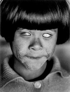 Foto na História: A cegueira pela bomba atômica