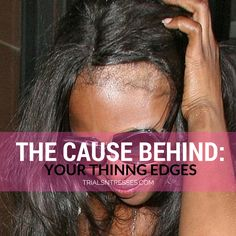 Noticed your hair thinning around the nape and edges? Here is the cause behind your thinning edges and how to fix it.