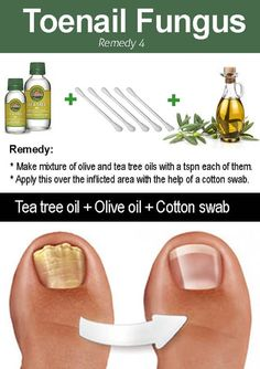 Tea tree oil can be used for many skin conditions as an effective remedy thanks to its anti-bacterial properties, one of them being toenail fungus. Using tea tree oil for toenail fungus has been an… Toenail Fungus Remedies, Toenail Fungus Treatment, Fungus Toenails, Cure For Toenail Fungus, Fingernail Fungus, Nail Treatment, Fungi, Essential Oils, Home Remedies