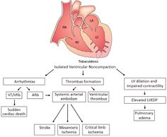 Left ventricular noncompaction cardiomyopathy - Shemisa - Cardiovascular Diagnosis and Therapy