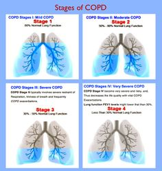 Chronic Obstructive Pulmonary Disease is a particularly nasty lung condition that escalates in stages amongst those with emphysema and/or chronic