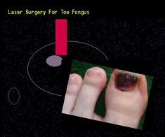 Laser surgery for toe fungus - Nail Fungus Remedy. You have nothing to lose! Visit Site Now