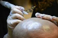 Scalp micropigmentation, SMP, micro hair, hair tattoo Scalp Micropigmentation, Hair Tattoos