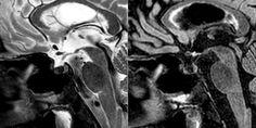 Solución caso problema nº 7: Hemocromatosis http://buff.ly/2sPN6vp #neurorradiología #neuroimagen #neurorad #mri https://flic.kr/p/VVkXRL   Hemocromatosis