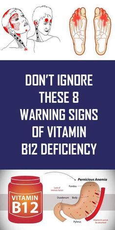 Don't Ignore These 8 Warning Signs Of Vitamin Deficiency - Page 2 of 4 - Buzzhome World Health And Beauty Tips, Health Advice, Health And Wellness, Health Care, Health Fitness, Fitness Facts, Yoga Fitness, Mineral Deficiency, Vitamin Deficiency