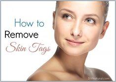 How To Remove Skin Tags - Naturellement se débarrasser des acrocordons