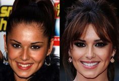 Cheryl Cole Teeth Before/After Veneers
